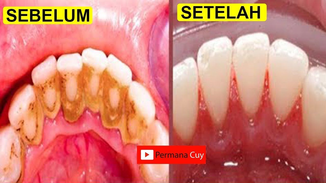 Cara Memutihkan Gigi Dalam 5 Menit Tanpa Harus Ke Dokter Gigi Memutihkangigi Alami Dental Plaque Teeth Tartar Removal Cleaning Teeth Plaque