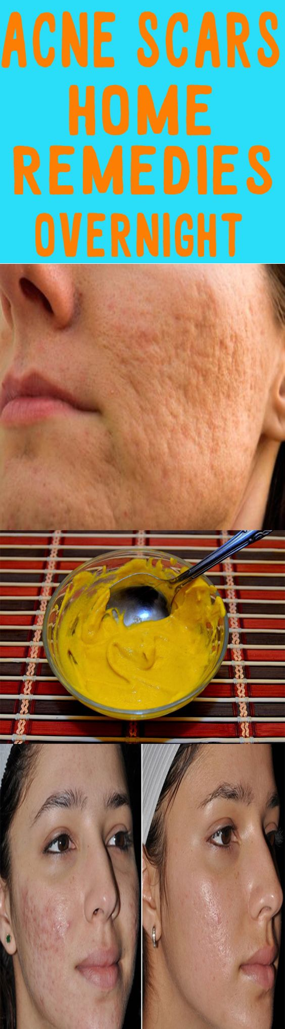 Home Remedies For Pimples And Blackheads For Oily Skin Diy