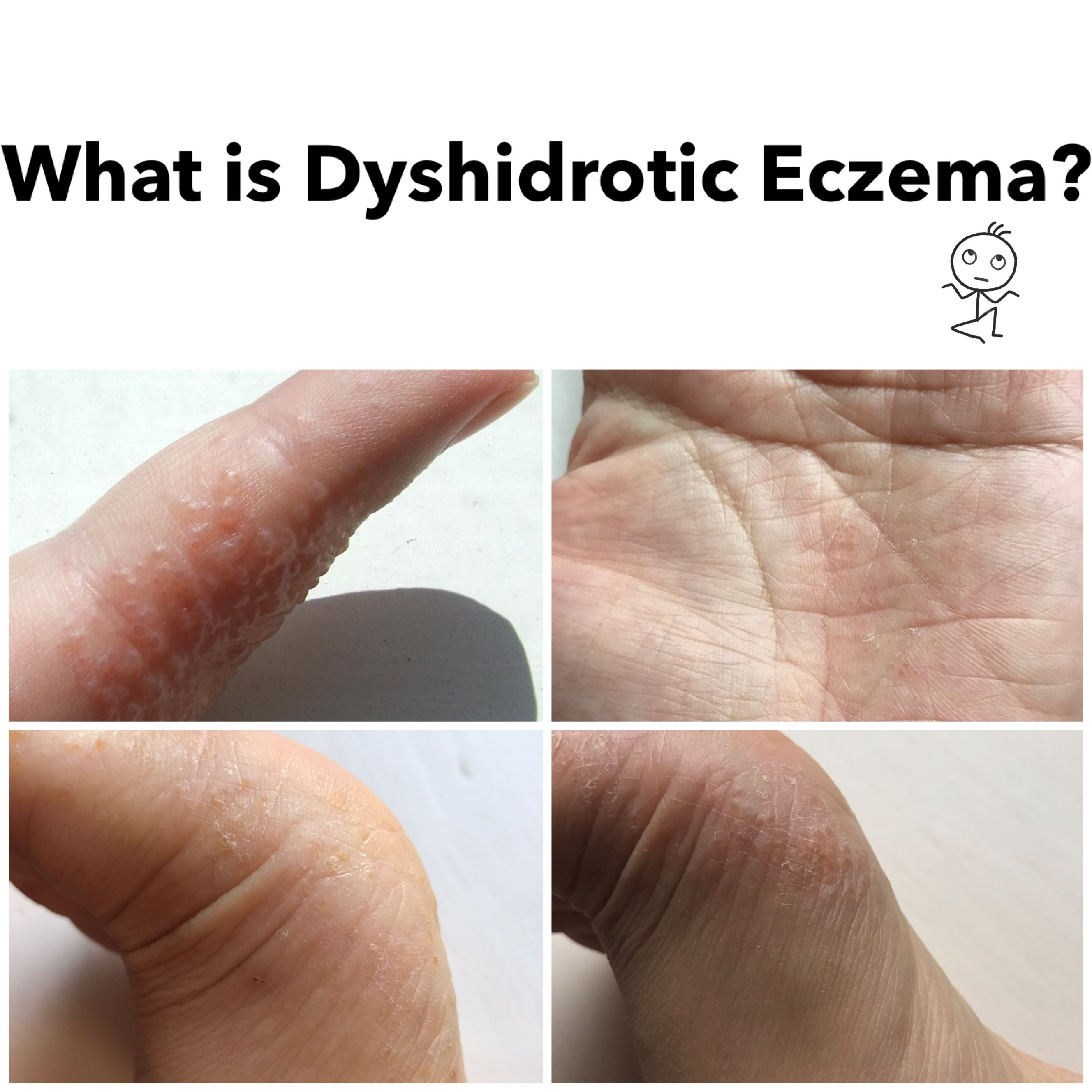How is dyshidrotic eczema diagnosed and treated