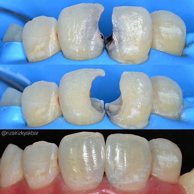 Case from @rizalrizkyakbar -  11 & 21 direct  #directcomposite #compositerestoration #compositefilling #dentist #odontologia #dentistry #dentalanatomy #dentalphotography #directrestoration  #biomimetic #bioemulation #rubberdam #rubberdamology #anteriorcomposite