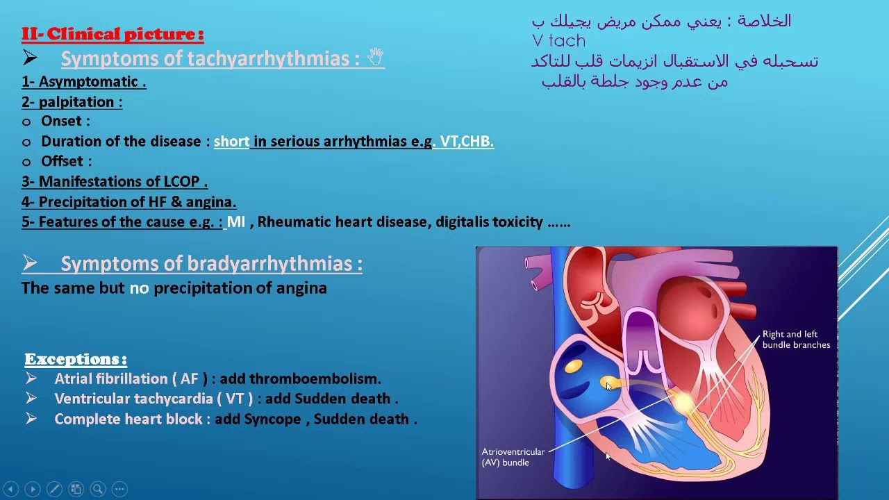 Introduction Into Arrhthmia Part 1 Introduction Oncology Manifestation