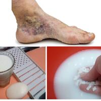 Varice - Boala venoasă cronică-metode diagnostice și de ghidare a tratamentului -