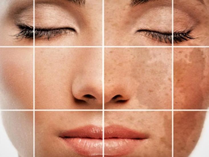 تصبغات الجلد العميقة علاجها و ازالة البقع البنية و فرط التصبغ بالليزر والاعشاب بشرة وشعر Pigmentation Treatment Hyperpigmentation Skin