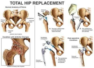 Total Hip Replacement Total Hip Replacement Hip Replacement Hip Replacement Surgery