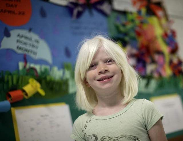 9 year old girl abandoned as an infant due to a cultural stigma around her albinism advocates for other orphans // beautiful girl and beautiful story #kids #albino