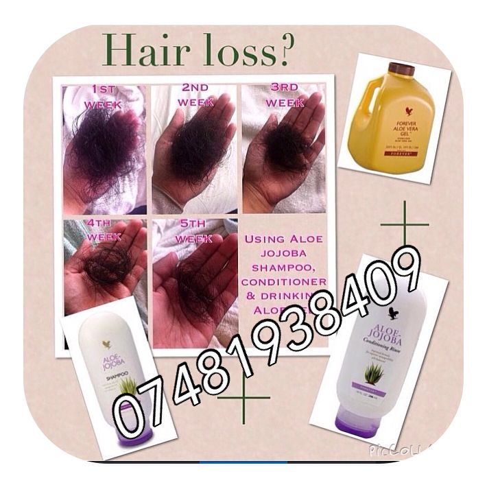 Are you suffering from hair loss. If you do these are the best products to use as i've used them myself! Get in touch with the number displayed on the picture. #hairloss#flakyscalp#aloe#gel#jojoba