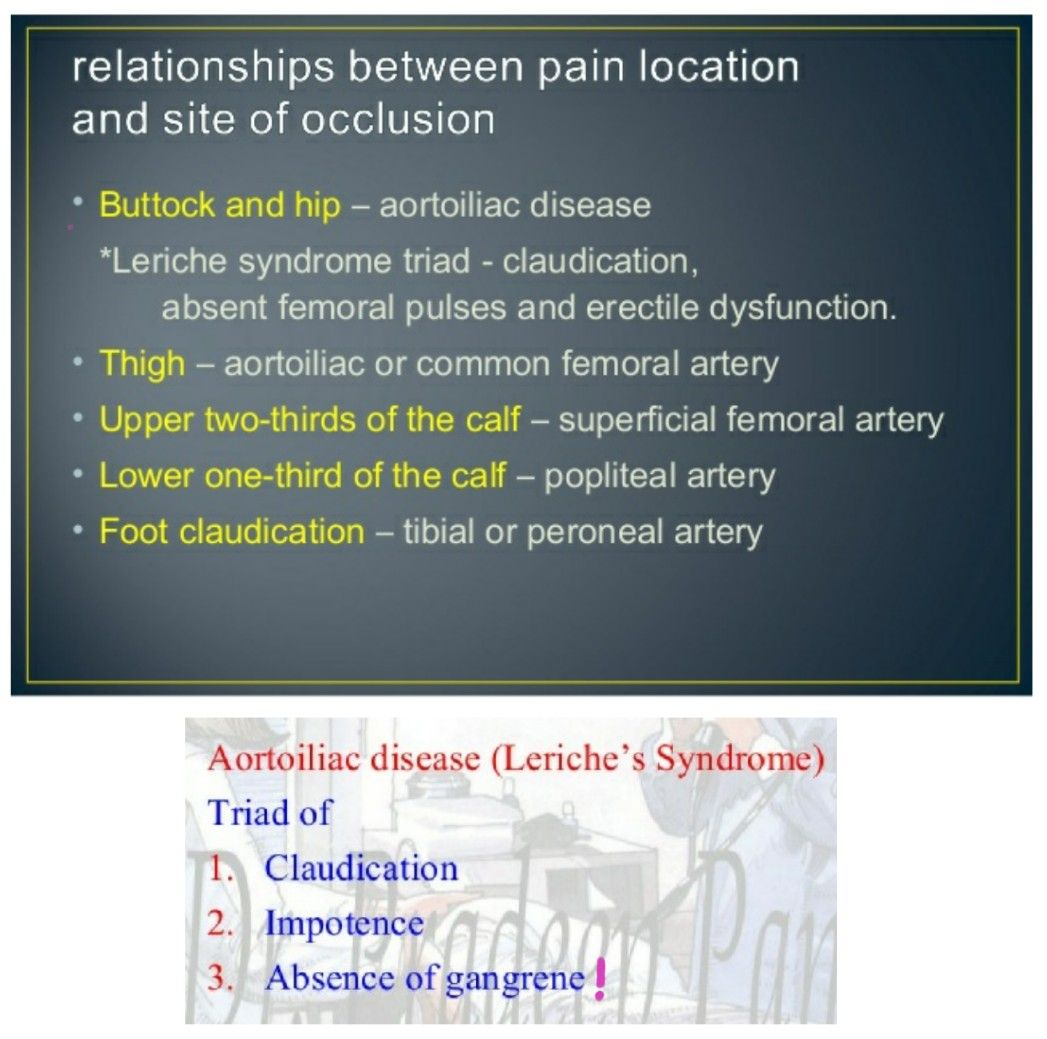 Clausication Amp Site Of Pain In Occlusive Disease