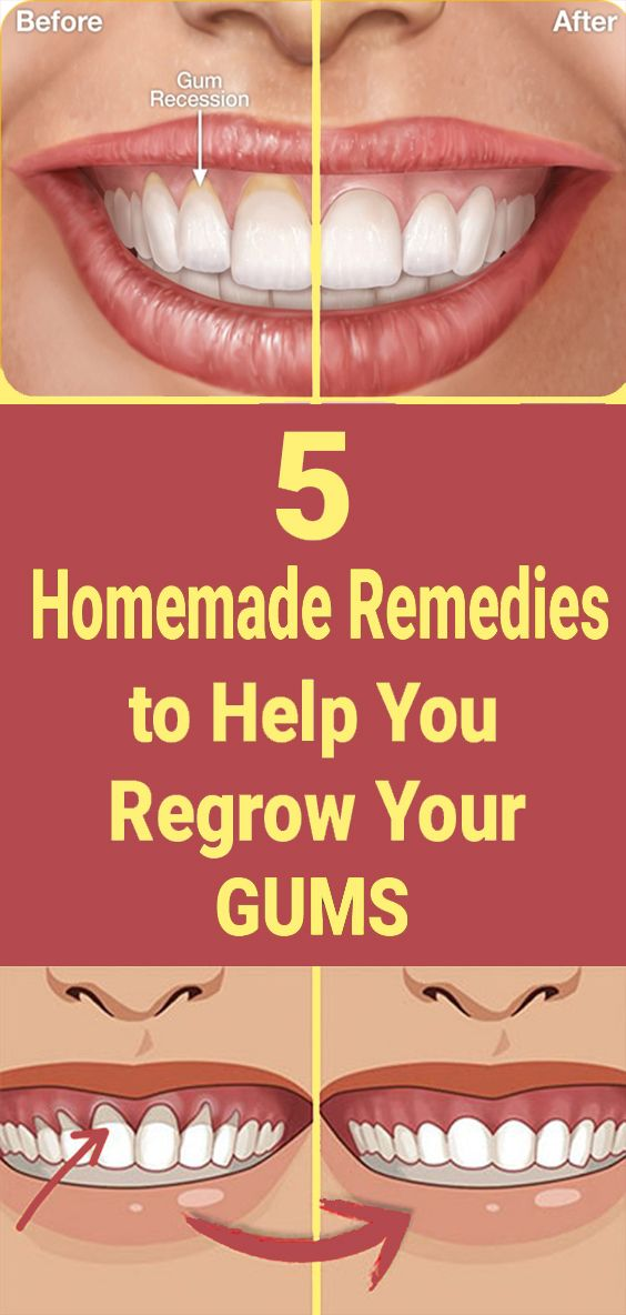 How To Get Rid Of Bumps On Your Gums