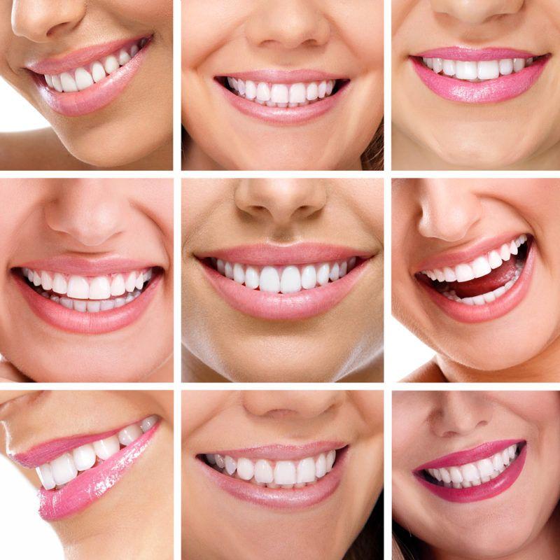 Pin on dental blogs