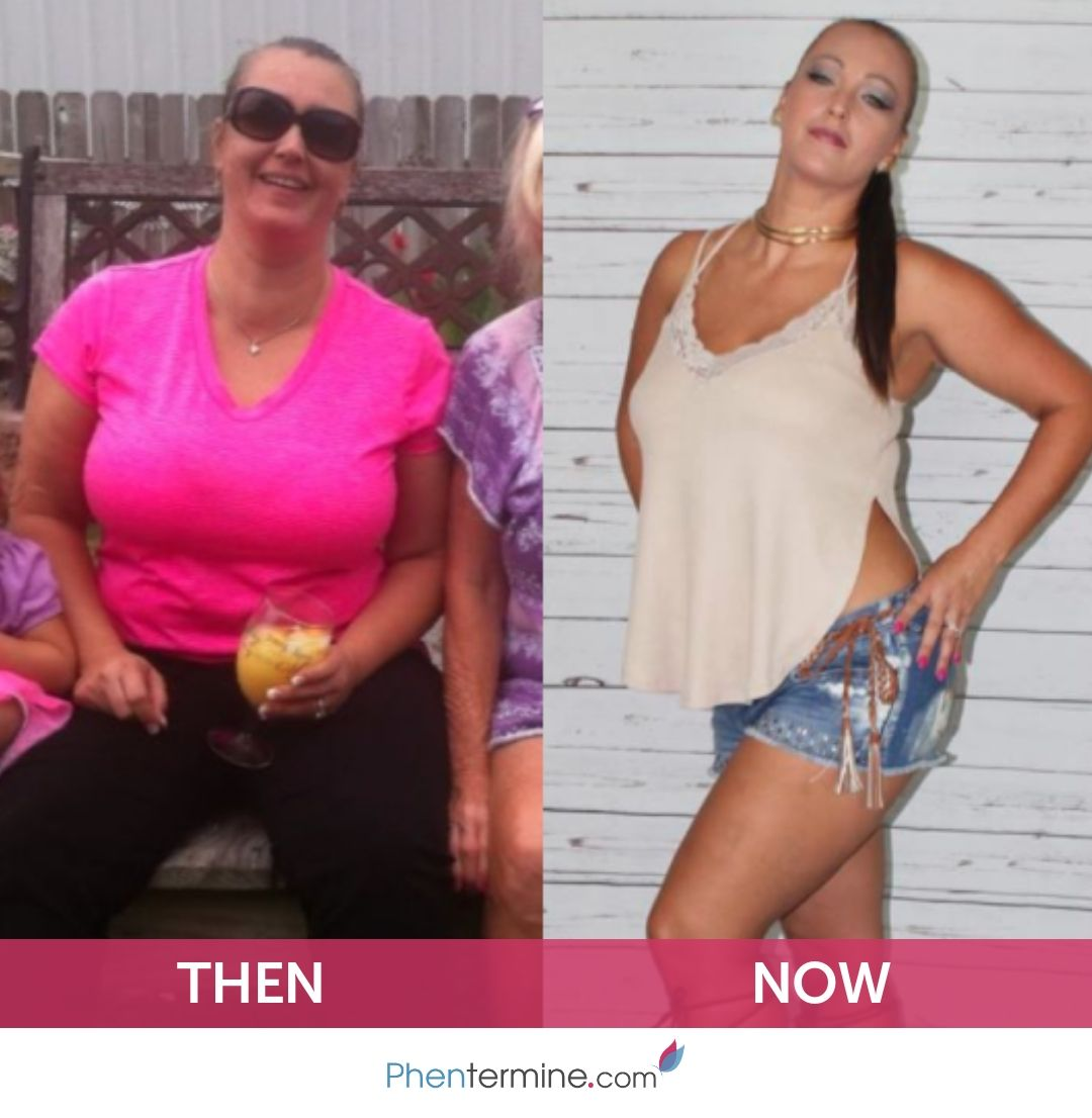 Phentermine Weight Loss Stories