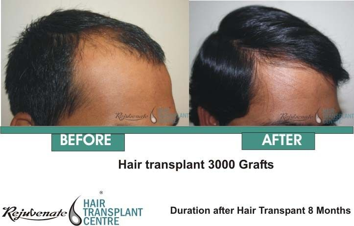 Most doctors hair transplant cost in india charge per grafts however