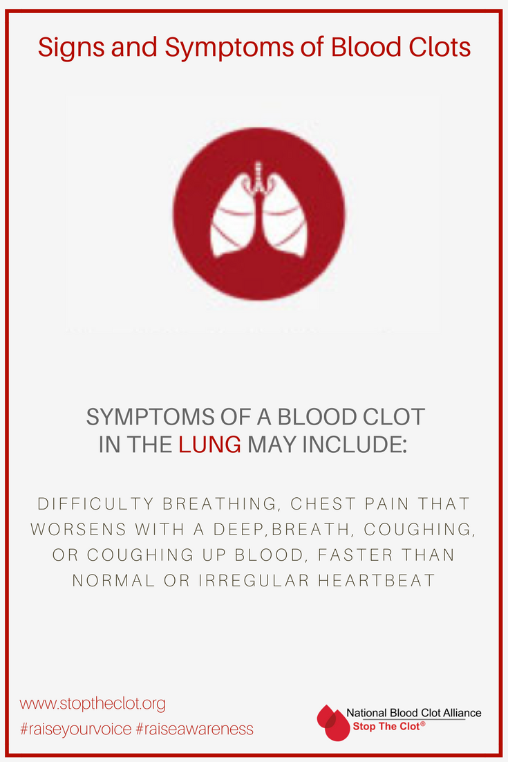 WHAT ARE P E BLOOD CLOTS