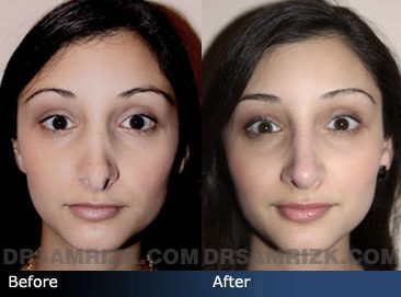 Nostril Reduction Google Search Rhinoplasty Before