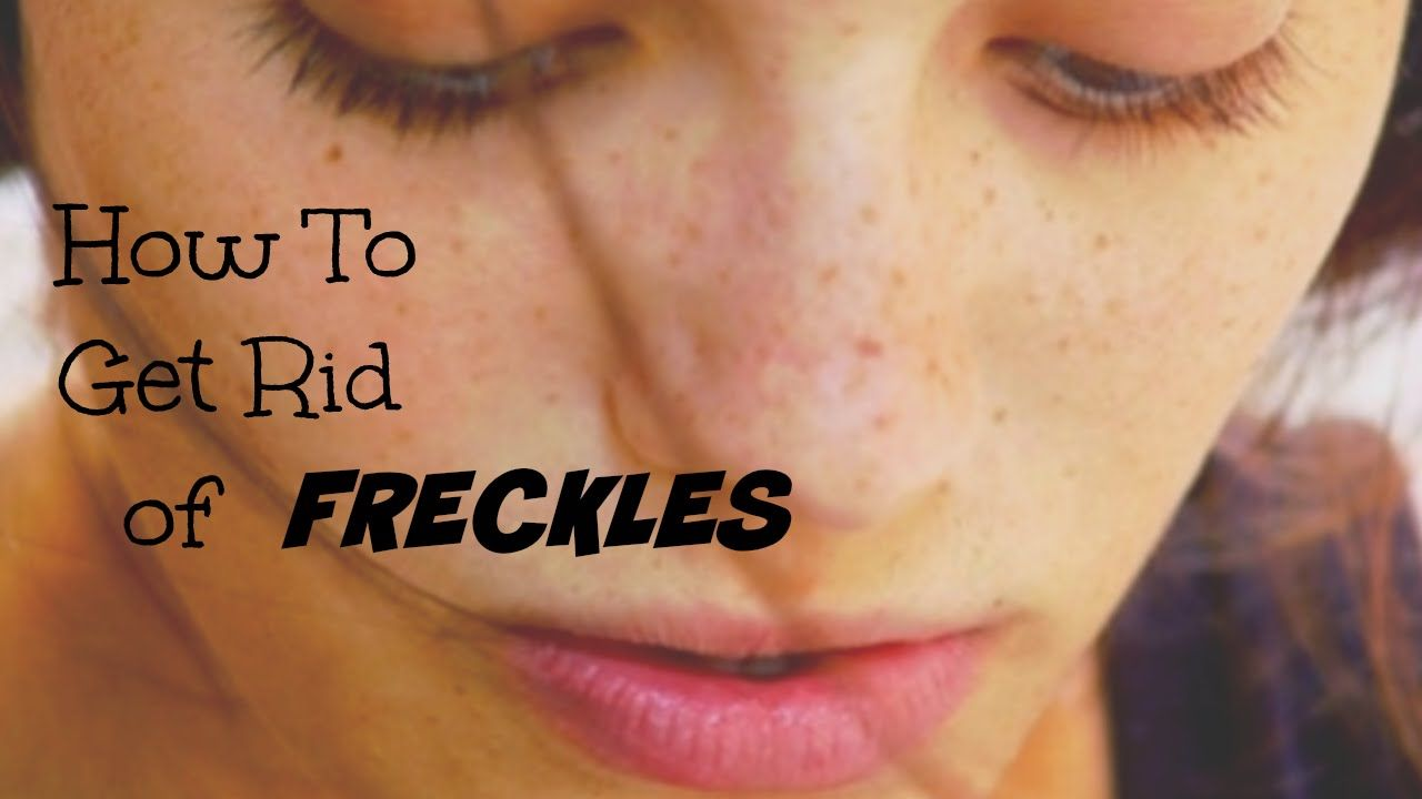 How to get rid of freckles forever
