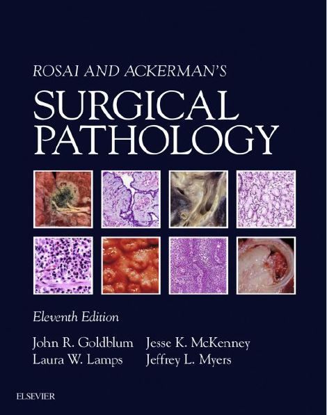 Rosai and ackermans surgical pathology 2 volume set 11th edition fandeluxe Choice Image