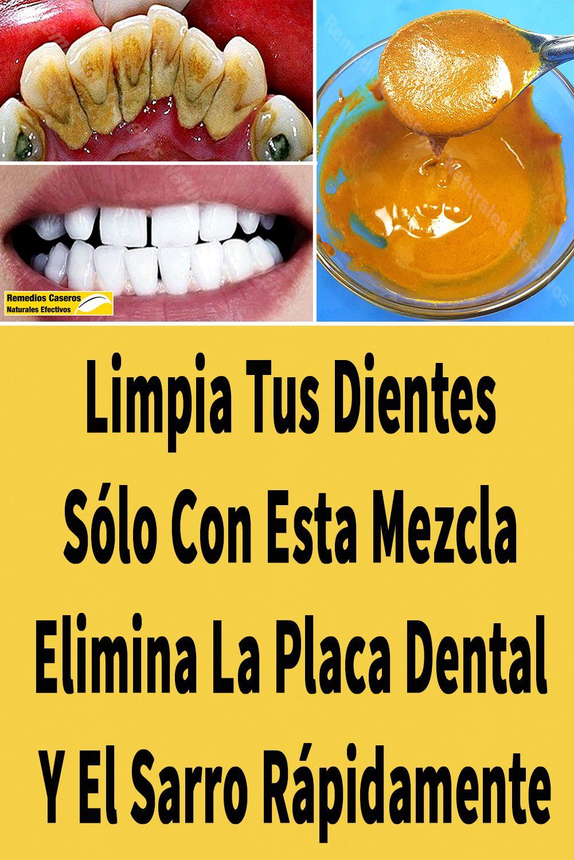 Limpia Tus Dientes Sólo Con Esta Mezcla Elimina La Placa Dental Y El Sarro Rápidamente Eliminar Sarro Dientes Remedios Para Adelgazar Remedios Para La Salud