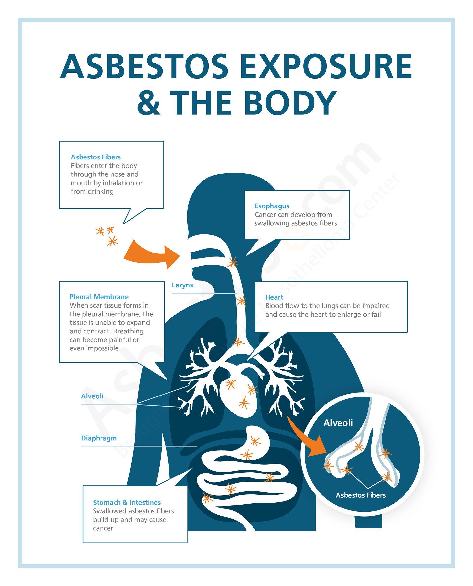 33+ Asbestos cancer