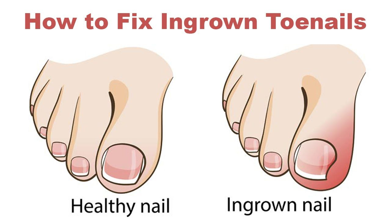 08b6c083f369809d23cee2d02895fcb1 - How To Get Rid Of Ingrown Toenails On The Side