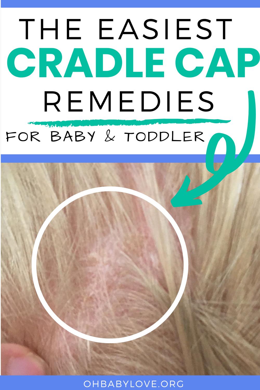 Cradle Cap Home Remedies To Get Rid Of It Oh Baby Love In 2020 Cradle Cap Toddler Cradle Cap Baby Cradle Cap