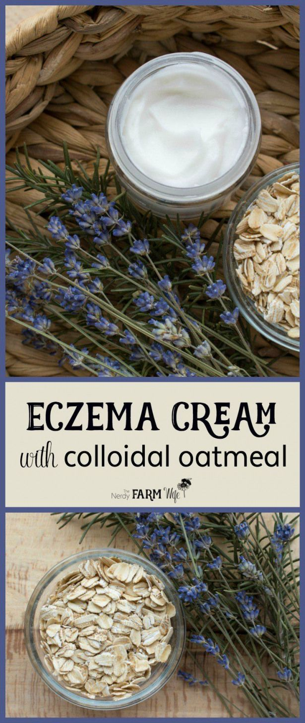 This soothing DIY eczema cream features colloidal oatmeal