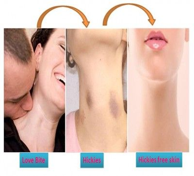 How to get a hickey