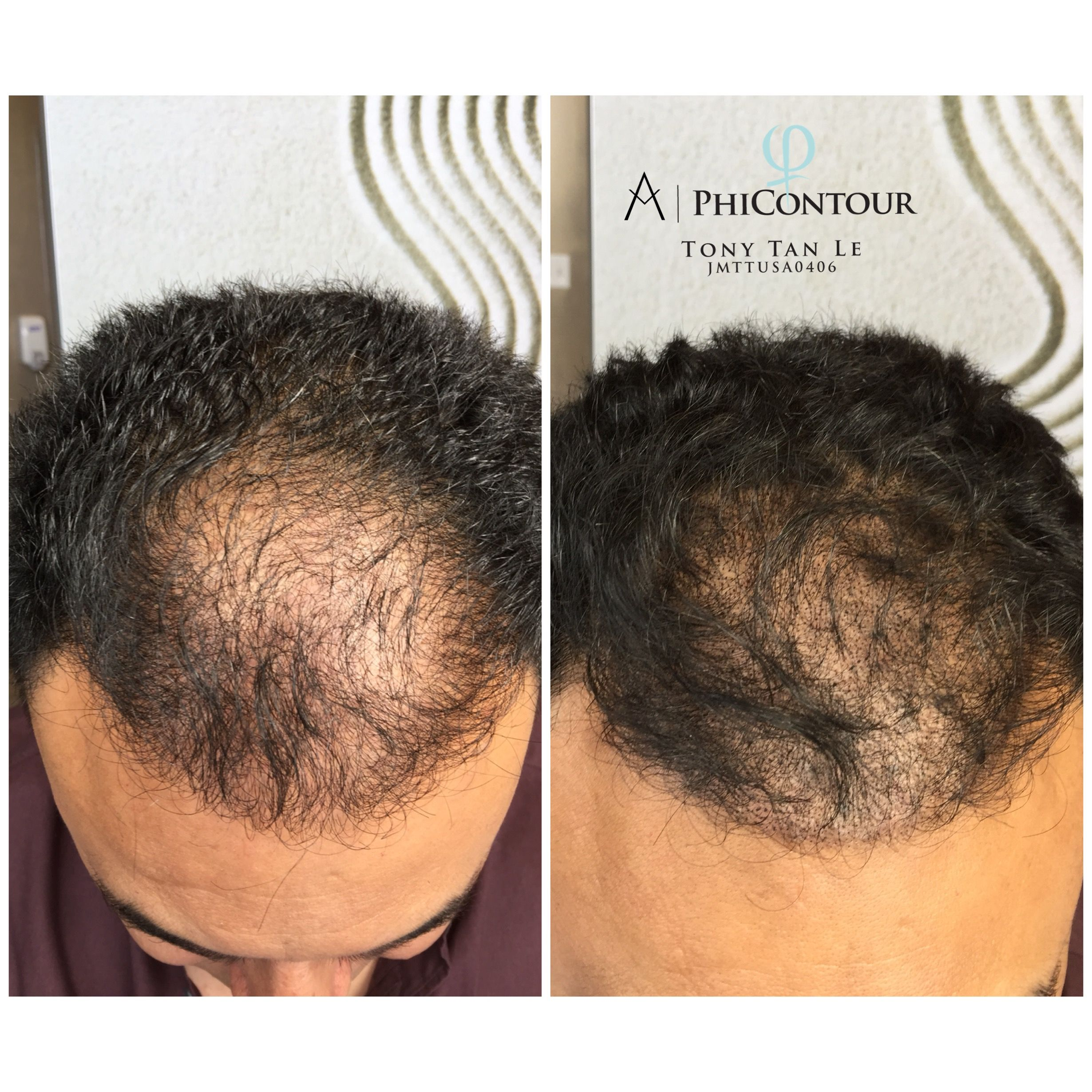 Scalp Micropigmentation Is One Of The Best Solution For Thinning