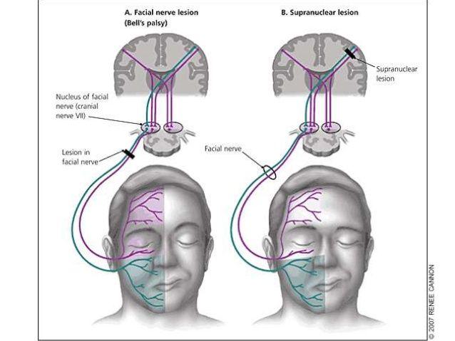 Facial nerve | I Need Hope | Pinterest | Facial, Medicine and ...