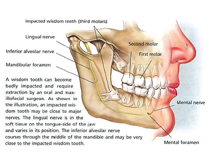 Diagram Of Mouth With Wisdom Teeth Auto Wiring Diagram Today