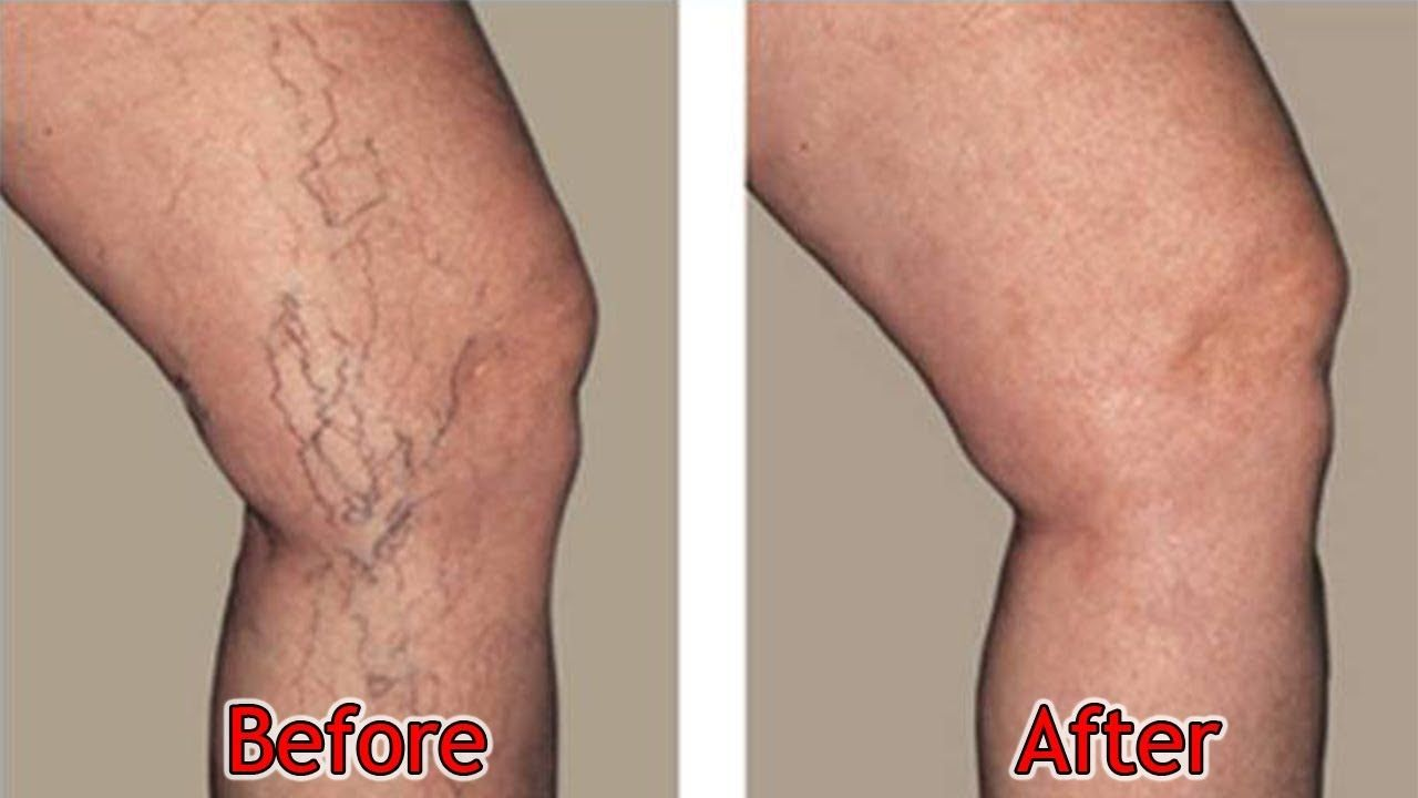 How To Naturally Eliminate Varicose Veins And Spider Veins With
