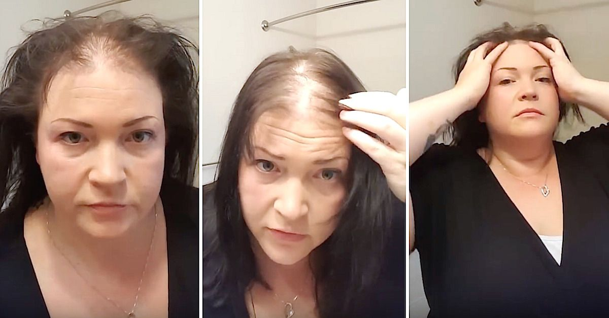 Woman With Thin Hair Does Tutorial To Camouflage It Thin Hair Styles For Women Hairstyles For Balding Crown Bald Hair