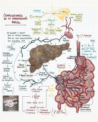 Hígado cirrótico con complicaciones de hipertensión portal