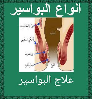 Pin On علاج البواسير