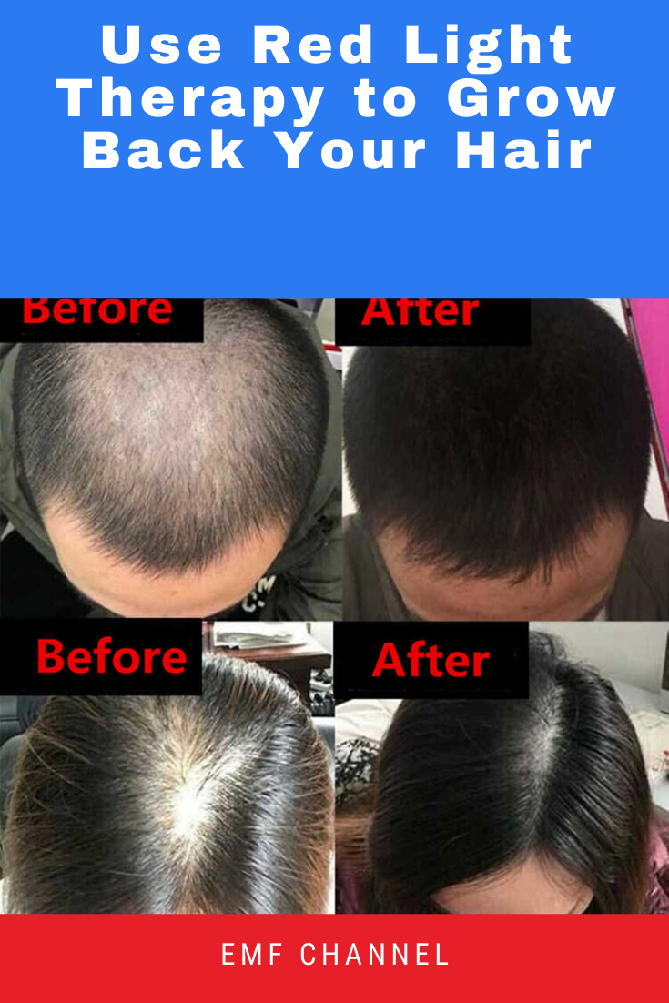 Use Red Light Therapy To Grow Back Your Hair Emf Channel In 2021 Red Light Therapy Light Therapy Light Red
