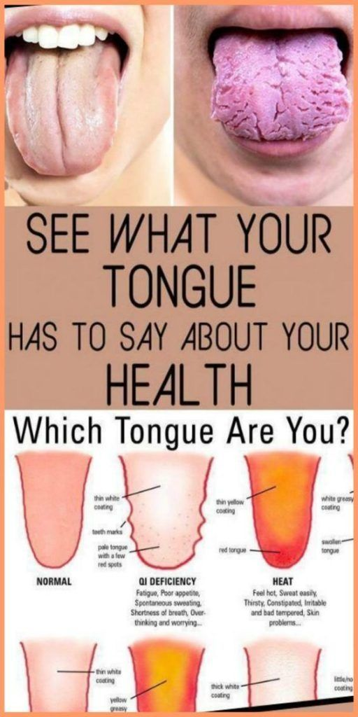 WHAT YOUR TONGUE IS TRYING TO TELL YOU ABOUT YOUR HEALTH