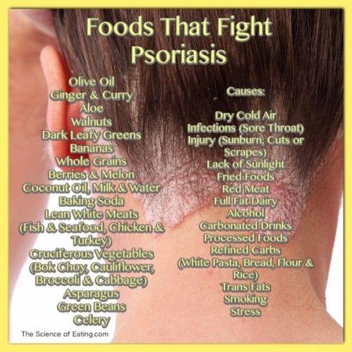 psoriasis flare up remedies pikkelysömör kezelése klotrimazollal