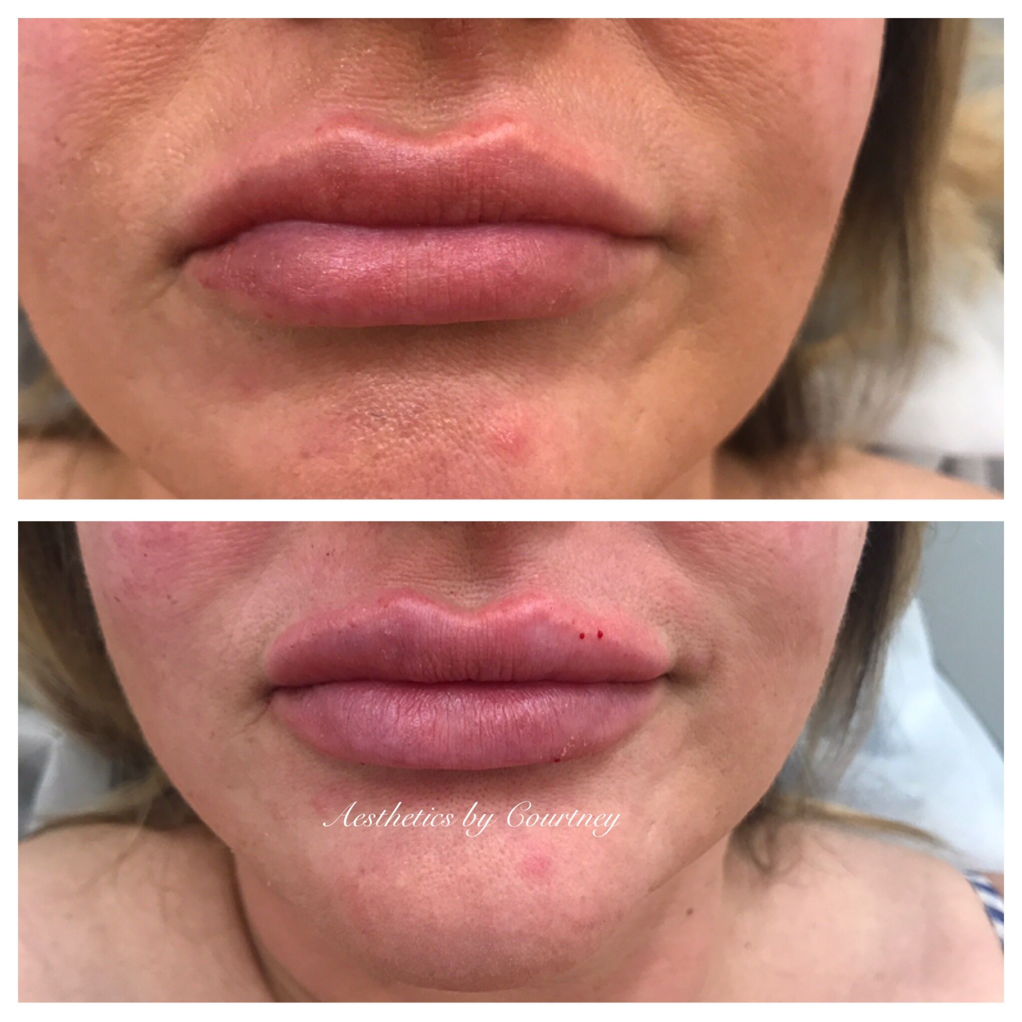 Lips Lipsbycourt Courtcreates Dermalfiller Dermalfillerlips Aesthetics Beautification Enhance Pout Kiss Results Lipaugmentation Cosmeticinjectable