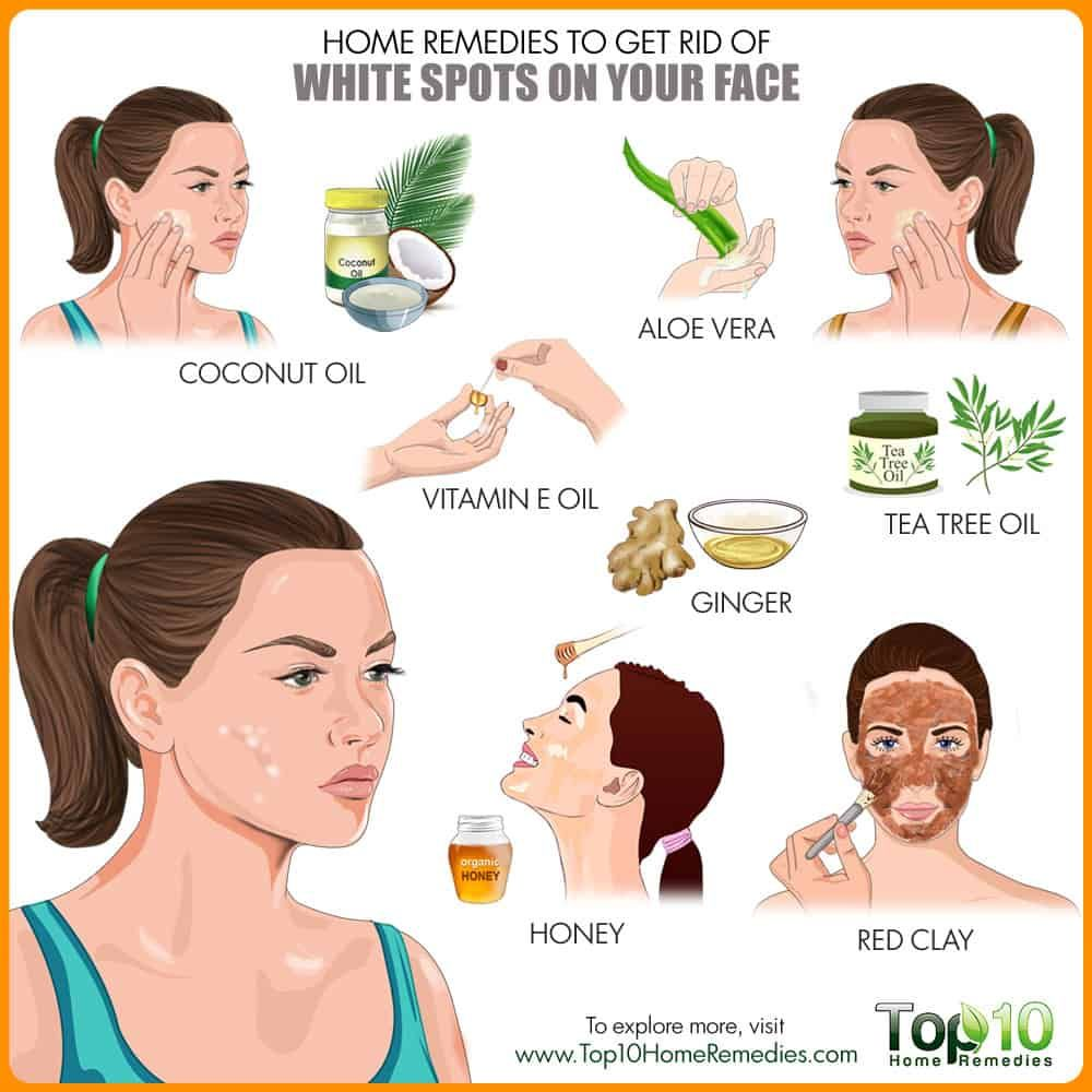 Home remedies for white spots on skin emedihealth