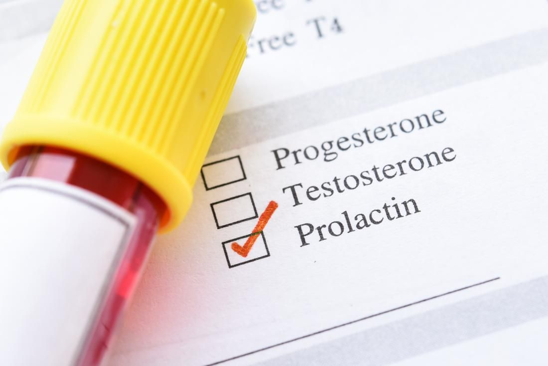 اعراض ارتفاع هرمون الحليب منها عدم انتظام الدورة الشهرية Http Bit Ly 2qp4zdi Infertility Treatment Male Infertility Progesterone