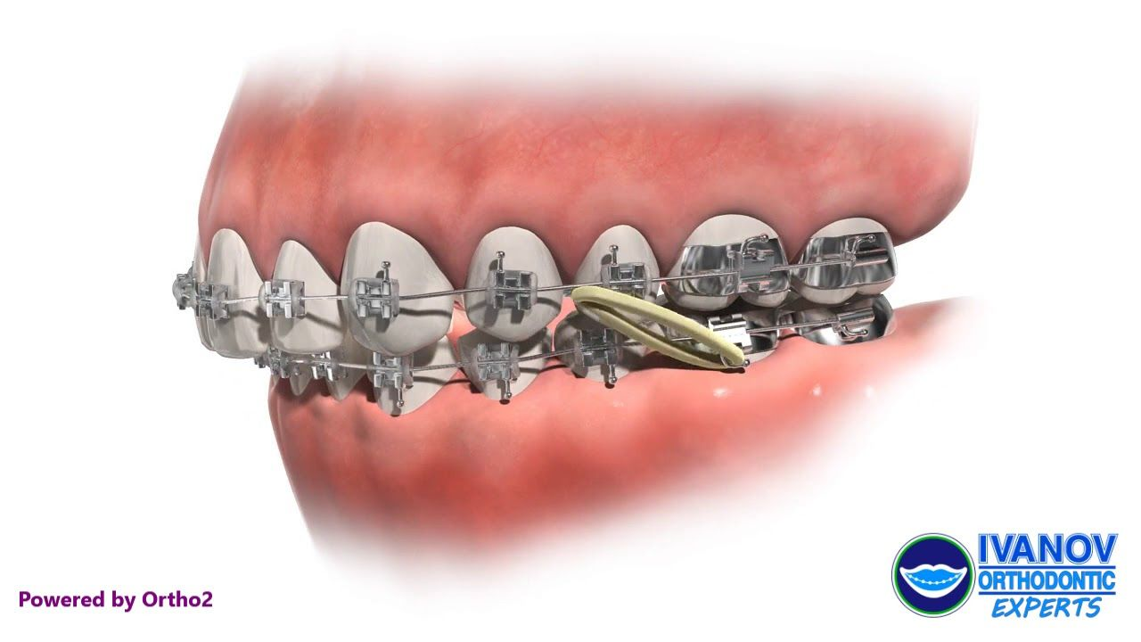 Palate Expander Appliance In 2020 Palate Expander Orthodontist Braces Orthodontist