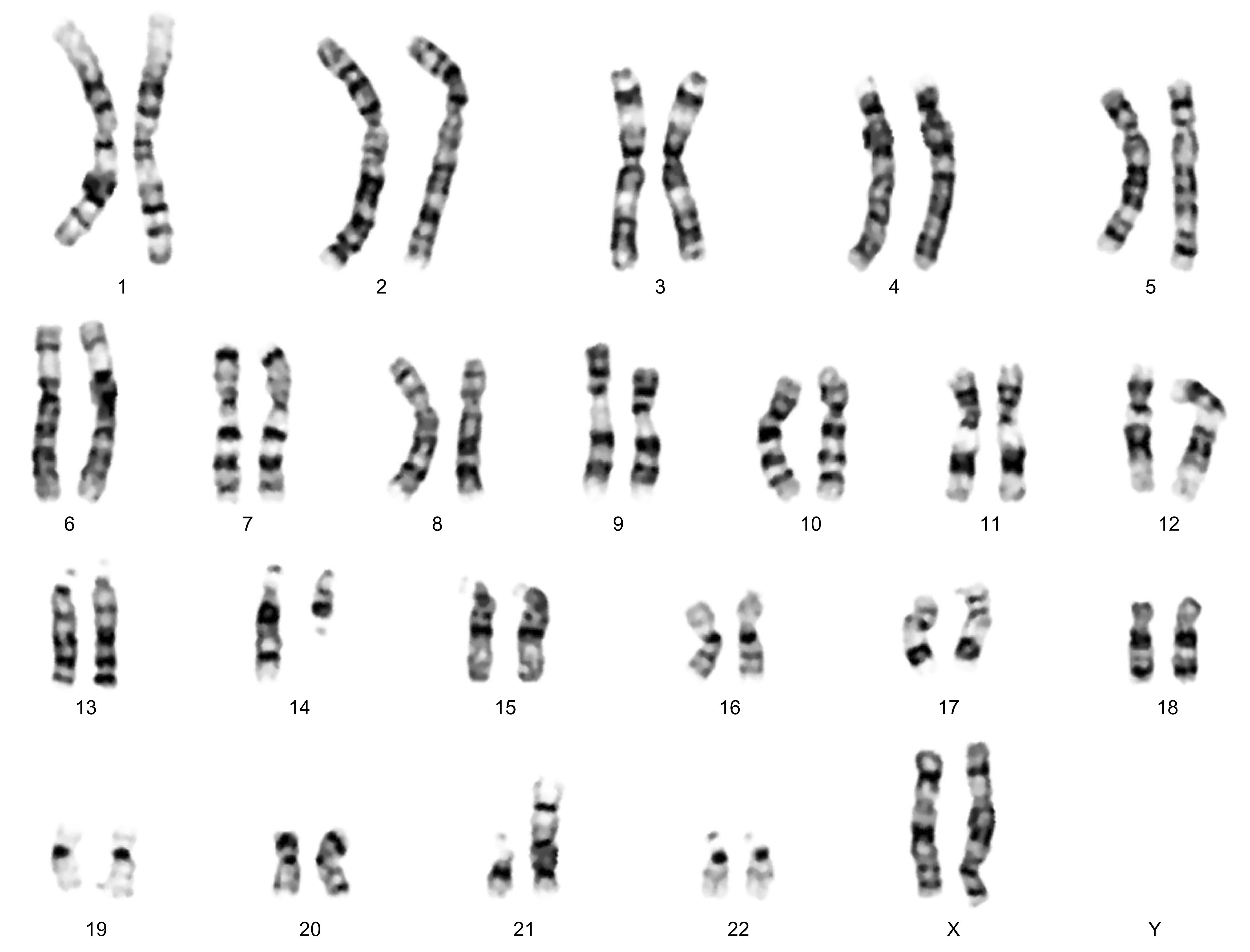 Shaney's type trisomy 21 translocation | About Down ... Robertsonian Translocation Karyotype