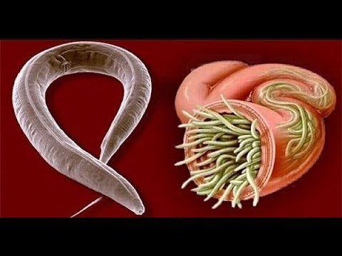 como matar parasitos del cuerpo