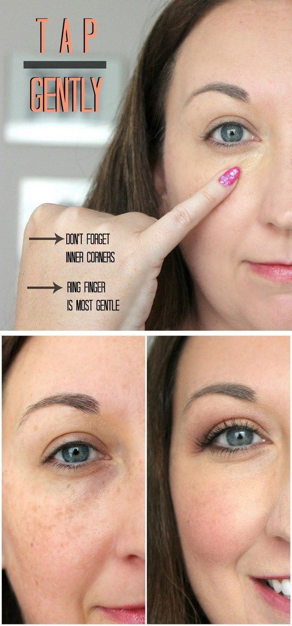 08e9b3bce96072f211c369274a258e8f - How To Get Rid Of Black Eyes From No Sleep