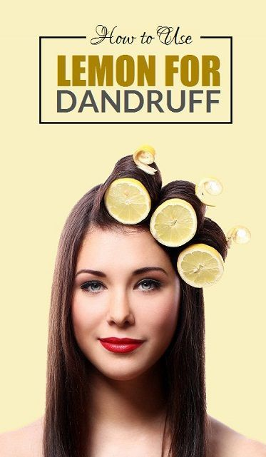 How to Use Lemon for Dandruff   Dandruff Dandruff ...