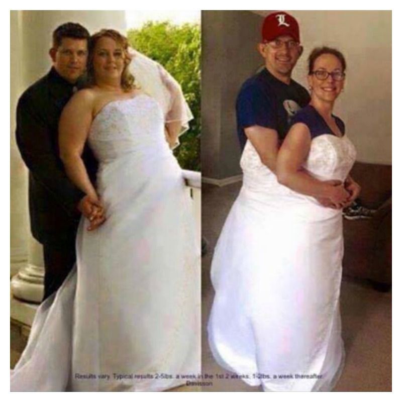 12 Before And After Weight Loss Wedding Dress Photos That Are Truly Jaw Dropping