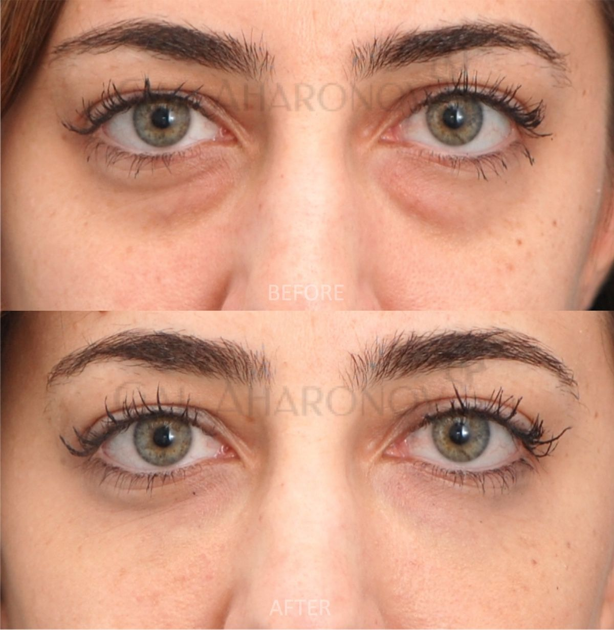 under eye fillers for dark circles bags and hollowness ...