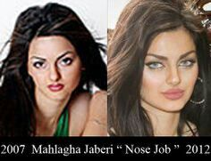 Mahlagha Jaberi Before Plastic Surgery Flawless Face Nose Job Physical Beauty