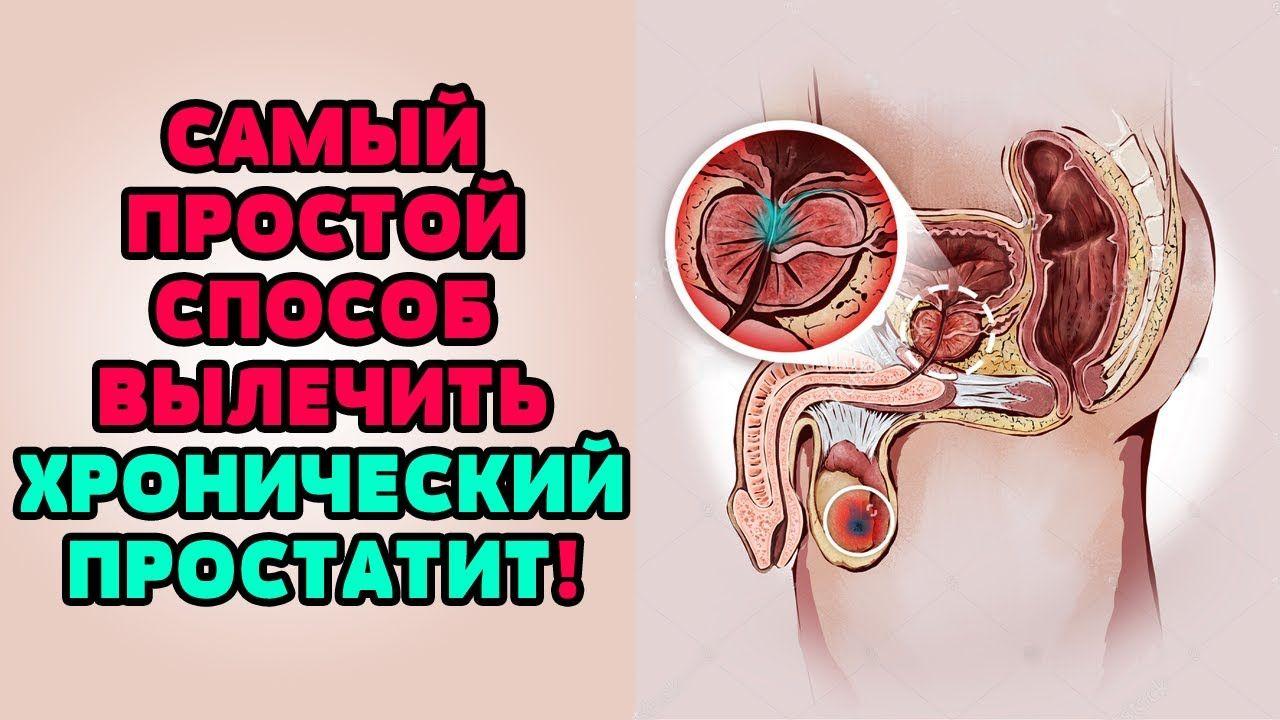 Как просто вылечить простатит как лечить обострение хронического простатита
