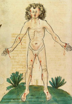 Bloodletting - Aderlassmännlein, 15th century