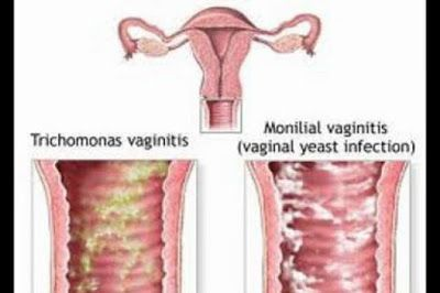 A Guide On How To Confirm A Yeast Infection and Yeast Infection Best Treatment