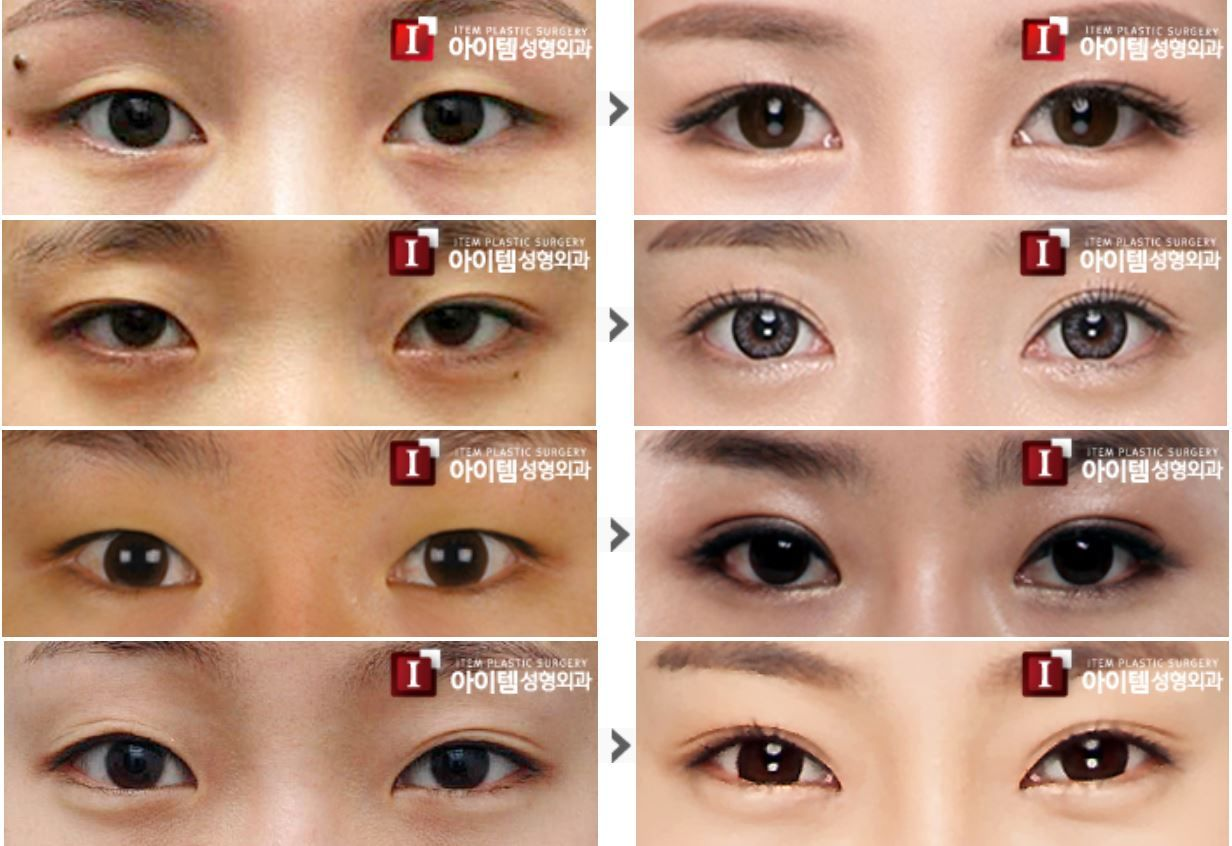 Double eyelid surgery - Partial Incision Method] plastic